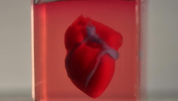 heart-Fig-580-3_0